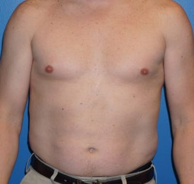 Liposuction Gallery - Patient 5227166 - Image 1