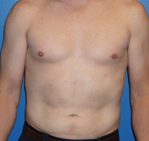 Liposuction Gallery - Patient 5227166 - Image 2