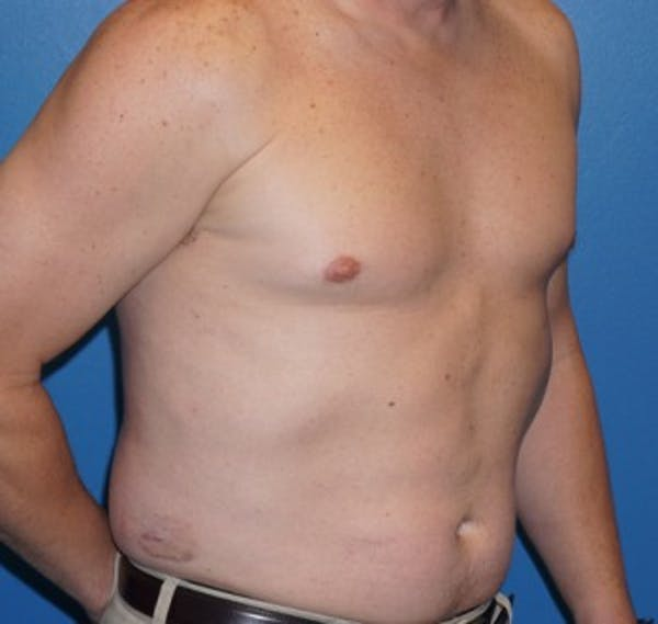 Liposuction Gallery - Patient 5227166 - Image 3