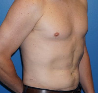 Liposuction Gallery - Patient 5227166 - Image 4