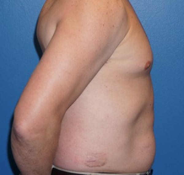 Liposuction Gallery - Patient 5227166 - Image 5