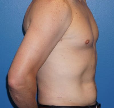 Liposuction Gallery - Patient 5227166 - Image 6