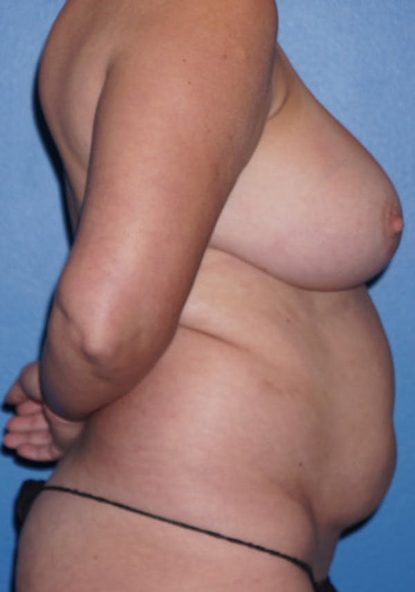 Liposuction Gallery - Patient 5227531 - Image 1