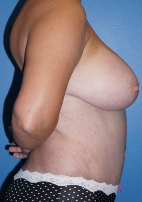 Liposuction Gallery - Patient 5227531 - Image 2