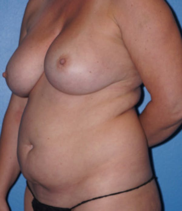 Liposuction Gallery - Patient 5227531 - Image 3