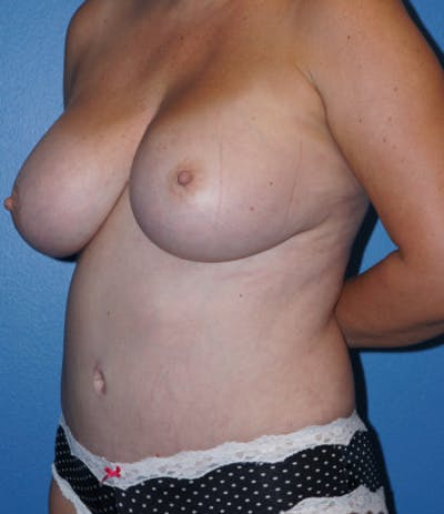 Liposuction Gallery - Patient 5227531 - Image 4