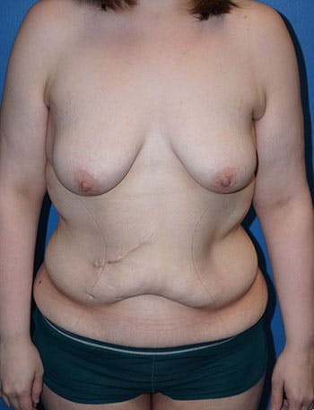 Tummy Tuck Gallery - Patient 5227189 - Image 1