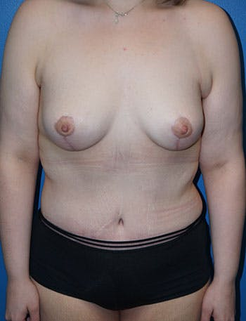 Tummy Tuck Gallery - Patient 5227189 - Image 2