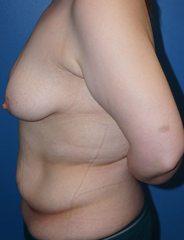Tummy Tuck Gallery - Patient 5227189 - Image 5
