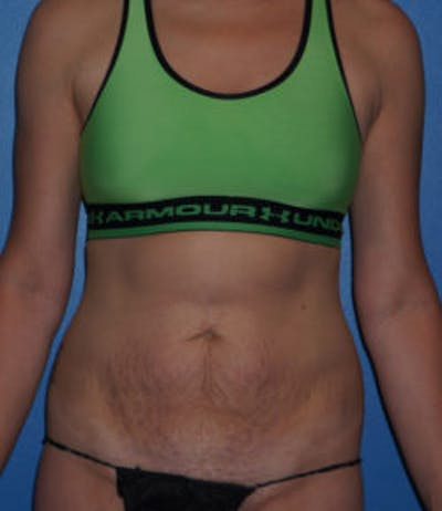 Tummy Tuck Gallery - Patient 5227194 - Image 1