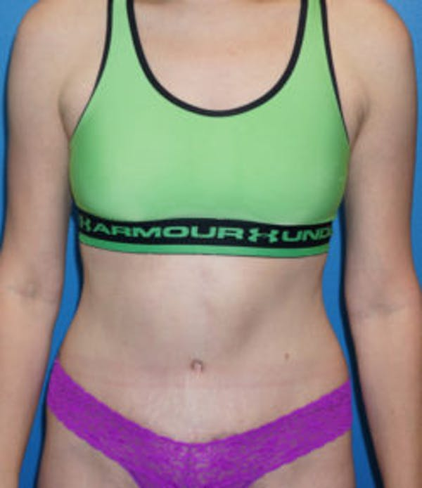 Tummy Tuck Gallery - Patient 5227194 - Image 2