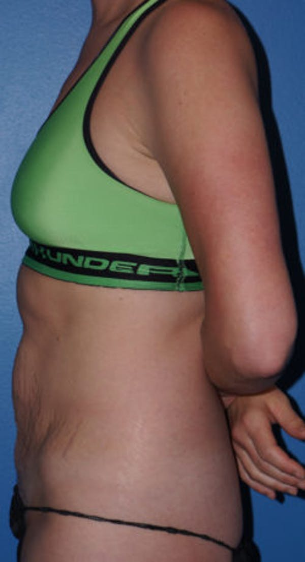 Tummy Tuck Gallery - Patient 5227194 - Image 3