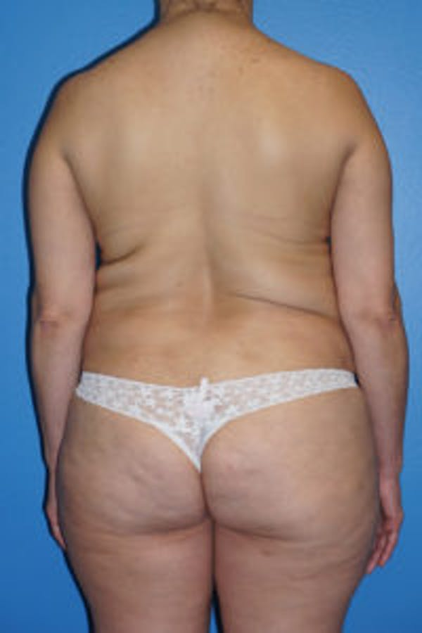 Tummy Tuck Gallery - Patient 5227196 - Image 5