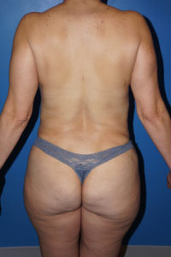 Tummy Tuck Gallery - Patient 5227196 - Image 6