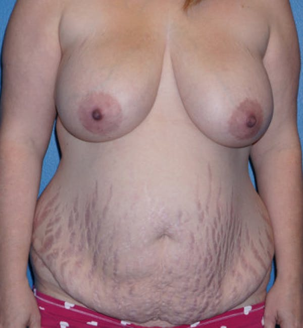 Tummy Tuck Gallery - Patient 5227619 - Image 1