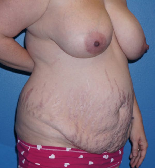 Tummy Tuck Gallery - Patient 5227619 - Image 3