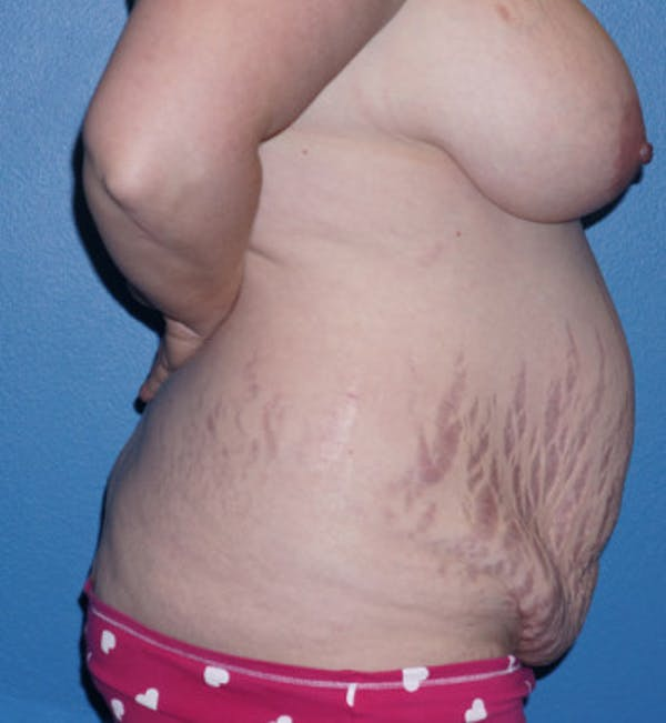Tummy Tuck Gallery - Patient 5227619 - Image 5