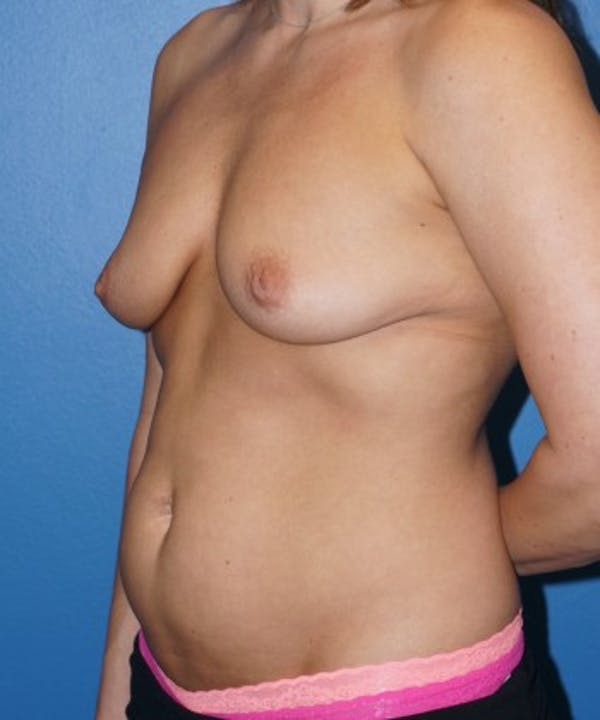 Tummy Tuck Gallery - Patient 5227620 - Image 5