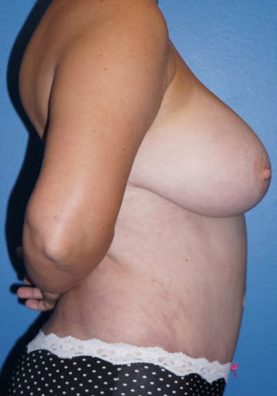 Tummy Tuck Gallery - Patient 5227623 - Image 2
