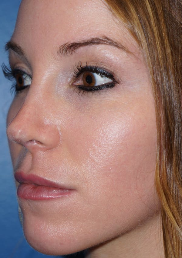 Cheek Filler Gallery - Patient 5227730 - Image 3