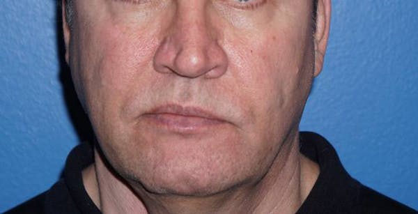 Non-Surgical Nose Job Gallery - Patient 5227732 - Image 1
