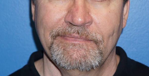 Non-Surgical Nose Job Gallery - Patient 5227732 - Image 2