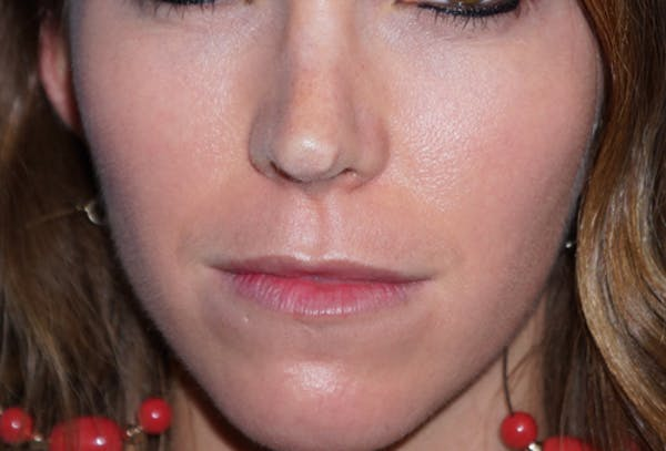 Non-Surgical Nose Job Gallery - Patient 5227735 - Image 1