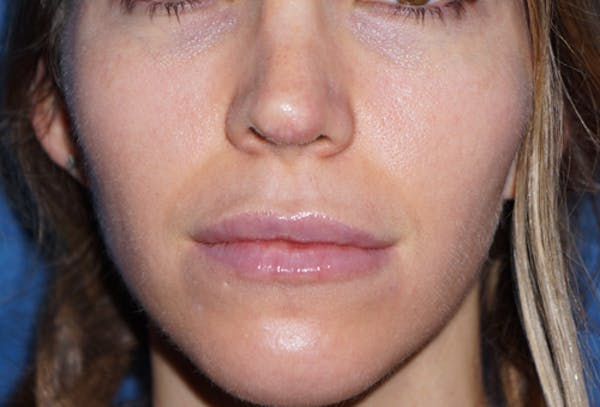 Non-Surgical Nose Job Gallery - Patient 5227735 - Image 2