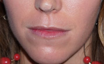 Lip Filler Gallery - Patient 5227739 - Image 1
