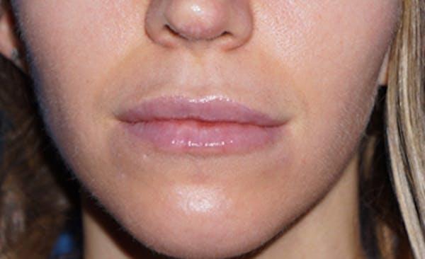Lip Filler Gallery - Patient 5227739 - Image 2