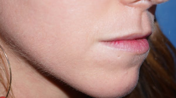 Lip Filler Gallery - Patient 5227739 - Image 3