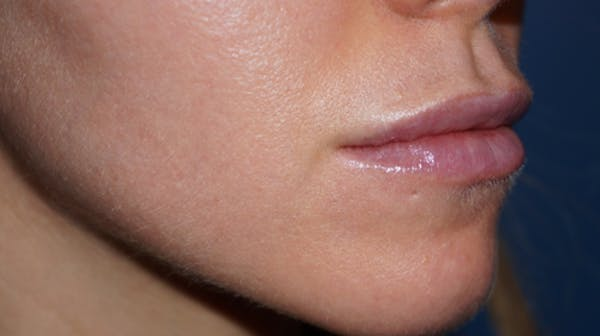 Lip Filler Gallery - Patient 5227739 - Image 4