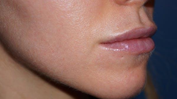 Lip Filler Gallery - Patient 5227739 - Image 4