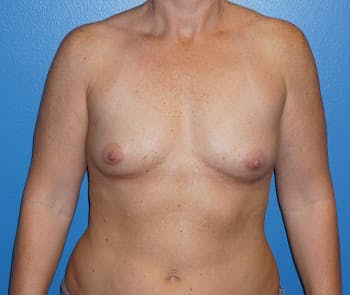 Breast Augmentation Gallery - Patient 5750100 - Image 1
