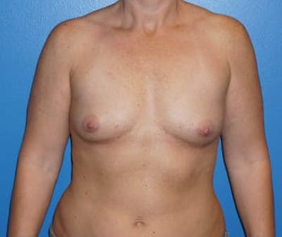 Breast Augmentation Gallery - Patient 5750100 - Image 7