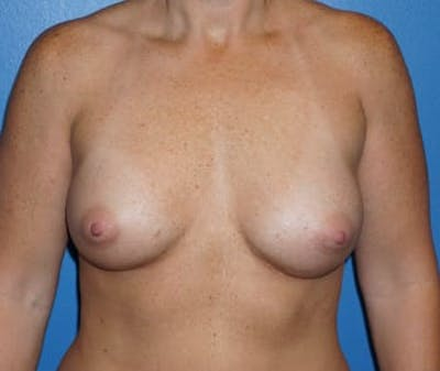 Breast Augmentation Gallery - Patient 5750100 - Image 2