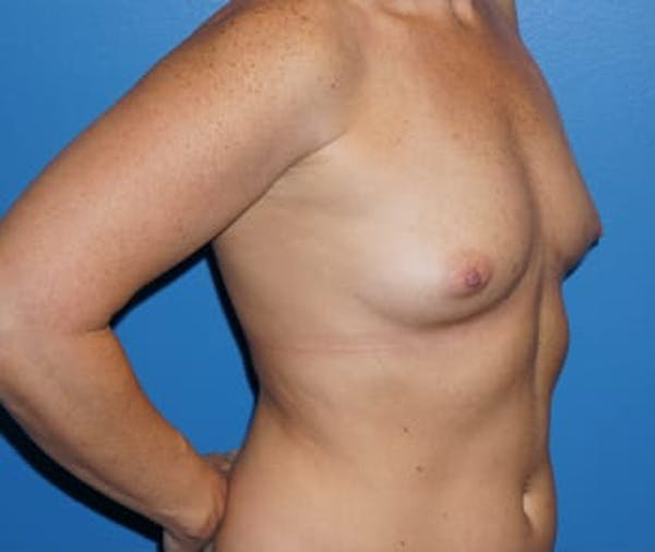 Breast Augmentation Gallery - Patient 5750100 - Image 3