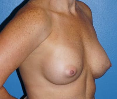 Breast Augmentation Gallery - Patient 5750100 - Image 4