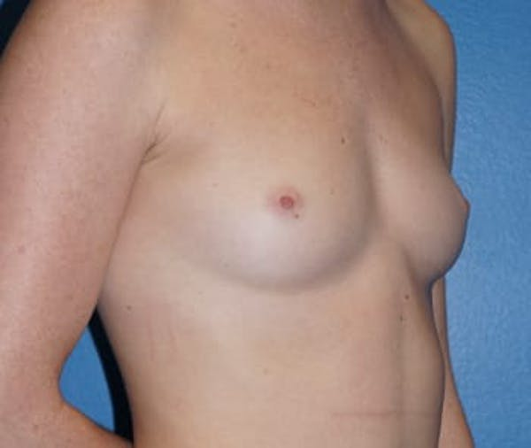 Breast Augmentation Gallery - Patient 5750103 - Image 1