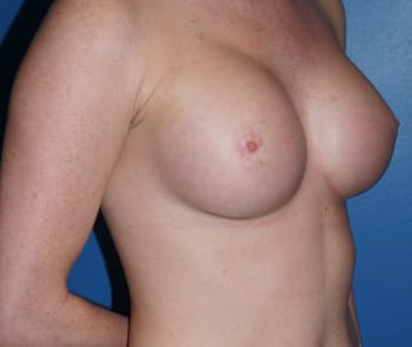 Breast Augmentation Gallery - Patient 5750103 - Image 2