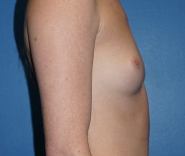 Breast Augmentation Gallery - Patient 5750103 - Image 3
