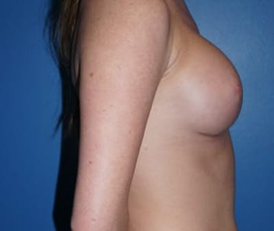 Breast Augmentation Gallery - Patient 5750103 - Image 4