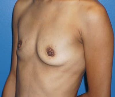 Breast Augmentation Gallery - Patient 5750104 - Image 1