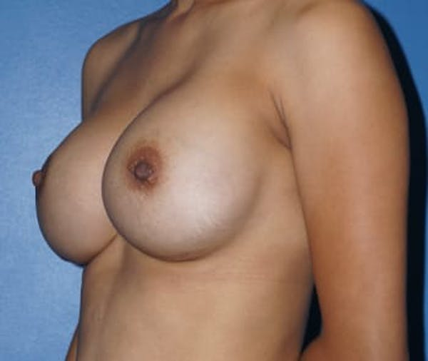 Breast Augmentation Gallery - Patient 5750104 - Image 2