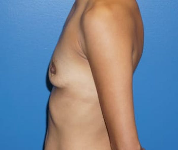 Breast Augmentation Gallery - Patient 5750104 - Image 3