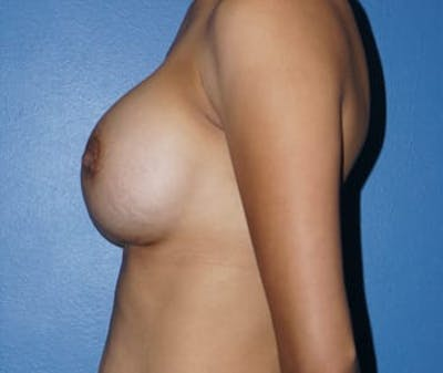 Breast Augmentation Gallery - Patient 5750104 - Image 4