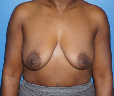 Breast Augmentation Gallery - Patient 5750105 - Image 1