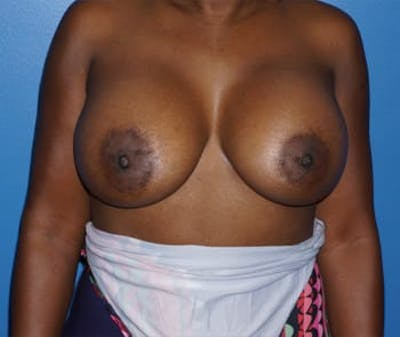 Breast Augmentation Gallery - Patient 5750105 - Image 2