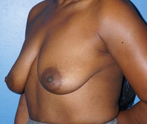 Breast Augmentation Gallery - Patient 5750105 - Image 3