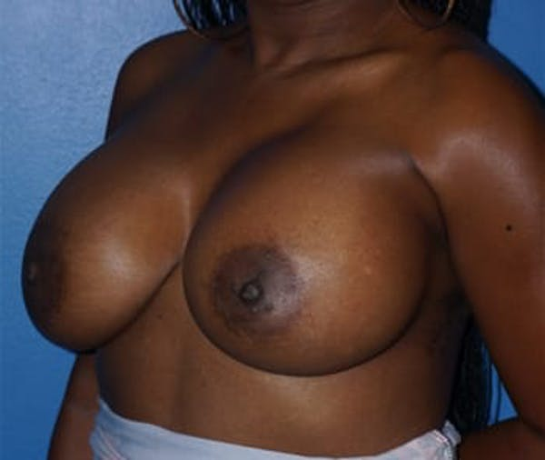Breast Augmentation Gallery - Patient 5750105 - Image 4